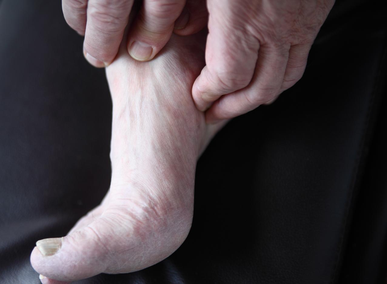 pés inchados dolorosos na criança