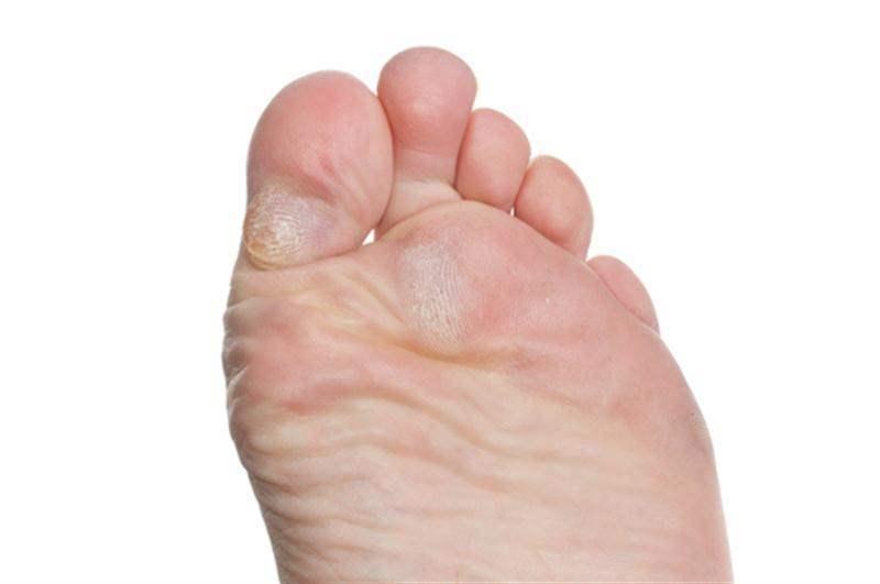 Antibióticos nas melhores para pernas úlceras