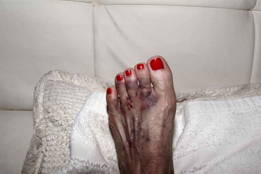 De torcido coágulo sangue no tornozelo