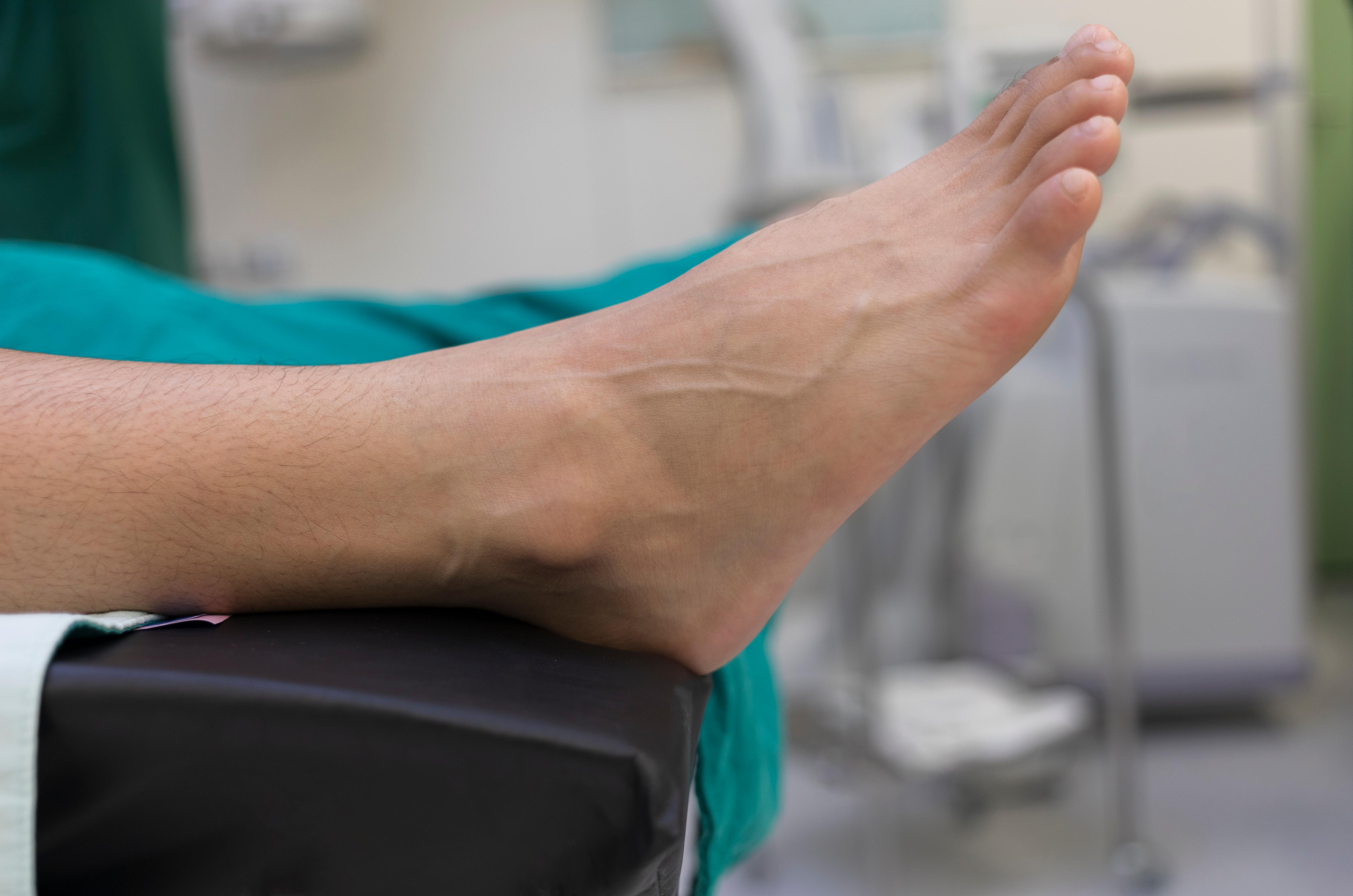 E no persistente inchaço tempo tornozelo há após panturrilha no quanto pé cirurgia