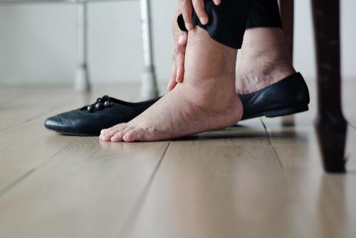 Inchados pernas machucadas tornozelos